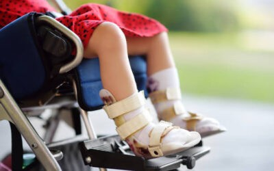 Latest Treatment Options for Cerebral Palsy
